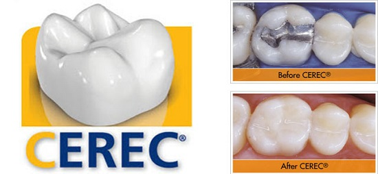 CEREC family dentist New Berlin