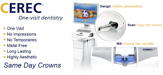 Same day cerec crowns in waukesha, wi