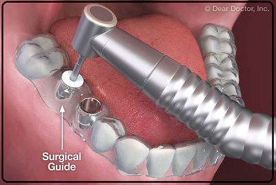 Surgical Guide for Dental Implant Procedure