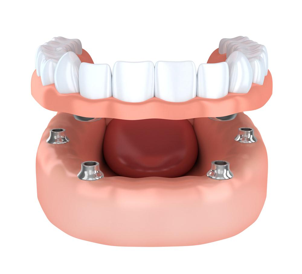 All on four implant supported dentures