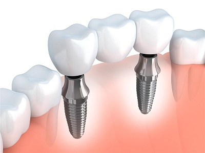 Dental implants: Waukesha, Milwaukee, WI
