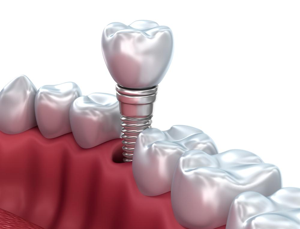 Single Tooth Replacement Options & Cost | Dental Implants ...