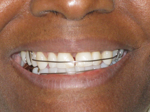 Before Amp After Porcelain Veneers Pictures Cosmetic